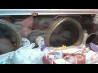 Очень эмоциональное видео о первом годе жизни малыша, который родился на 3,5 месяца раньше срока