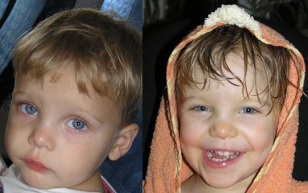 дети до и после усыновления 19