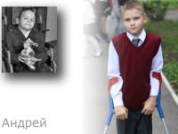 Дети из интерната для инвалидов после усыновления. Их вылечила семья!