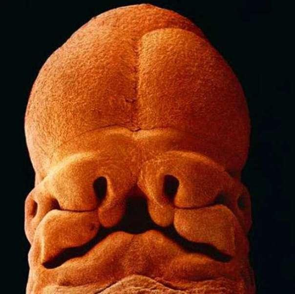 11. Неделя 5 постепенно начинает формироваться лицо, оформляются отверстия для глаз, носа и рта