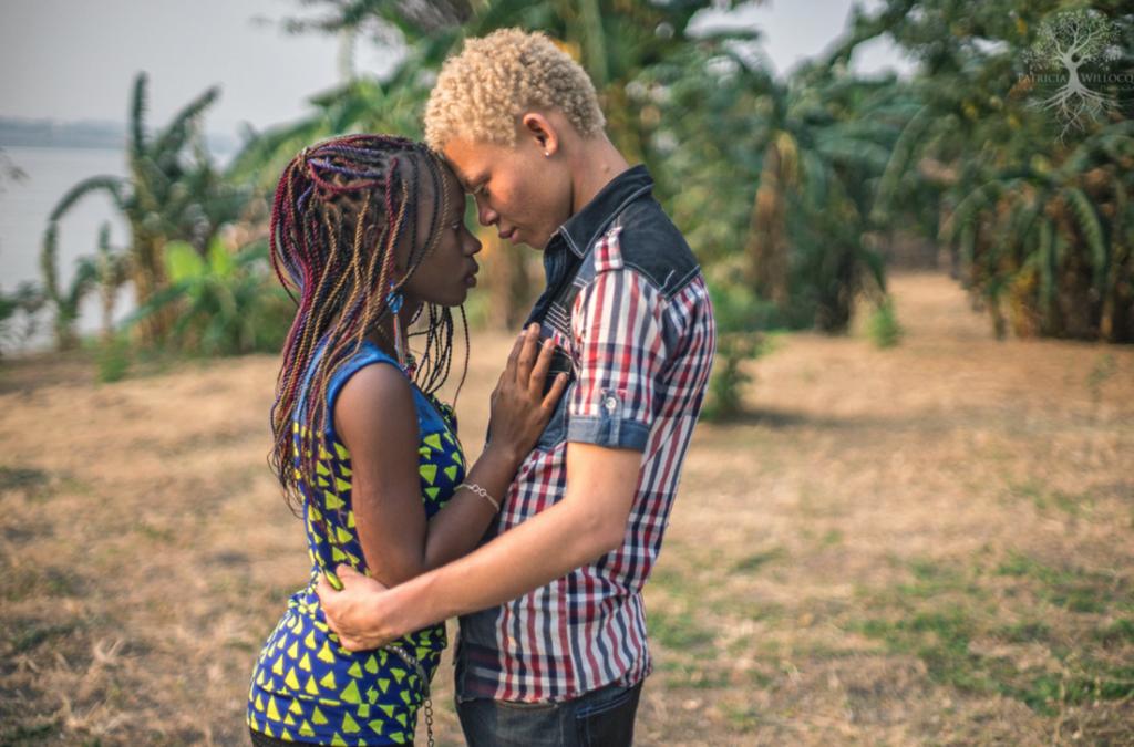 как живется альбиносам в африке