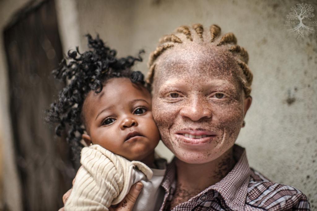 люди альбиносы в африки