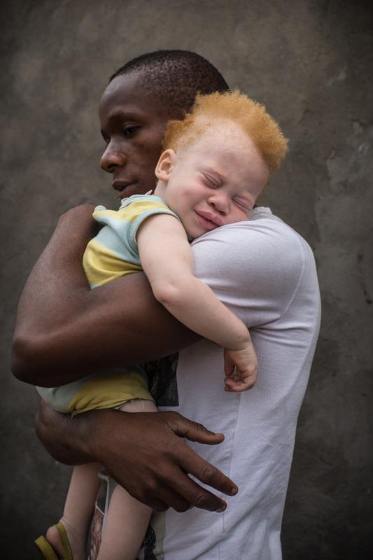 непростая судьба альбиносов в африке