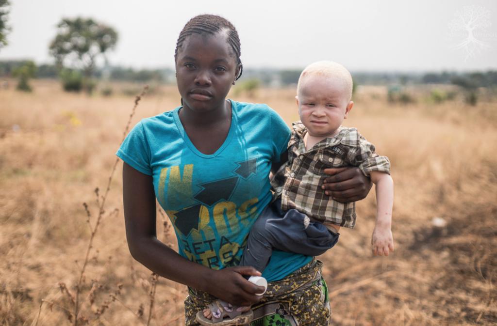 фото альбиносов африканцев удивительных видов