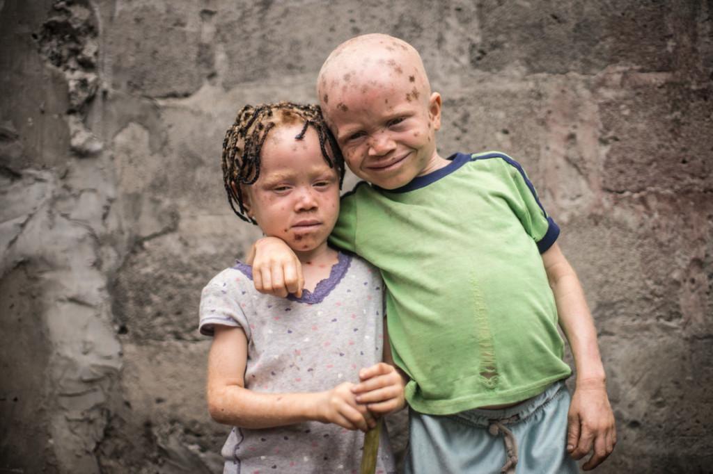 африканские дети-альбиносы