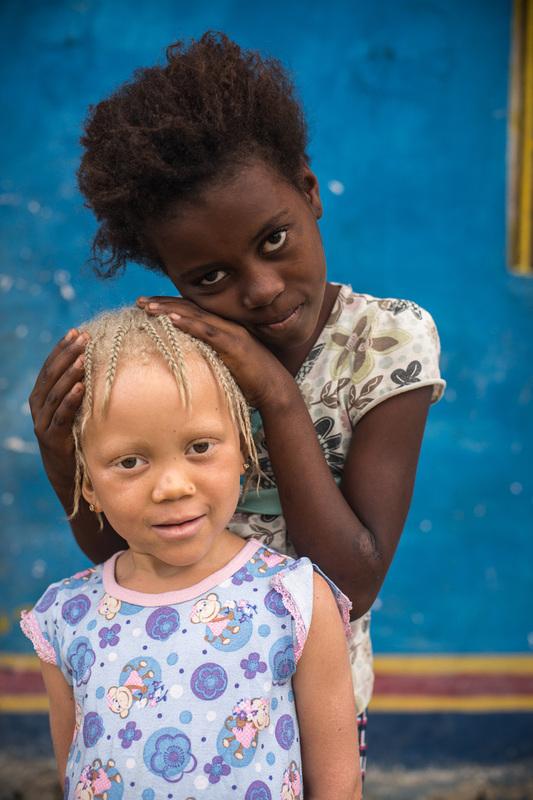 не такеи как все: дети-альбиносы