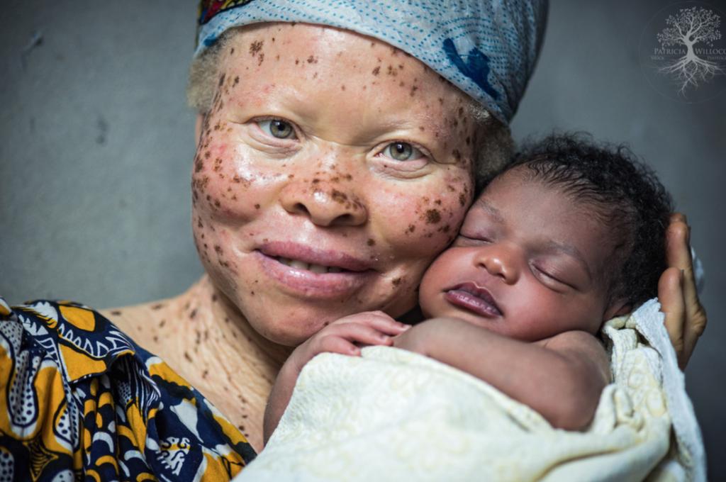 патрисиия уиллок и ее фоторепортаж об альбиносах