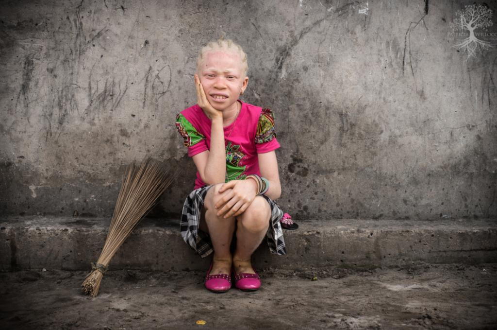 девочка альбинос в объективе патрисии уиллок