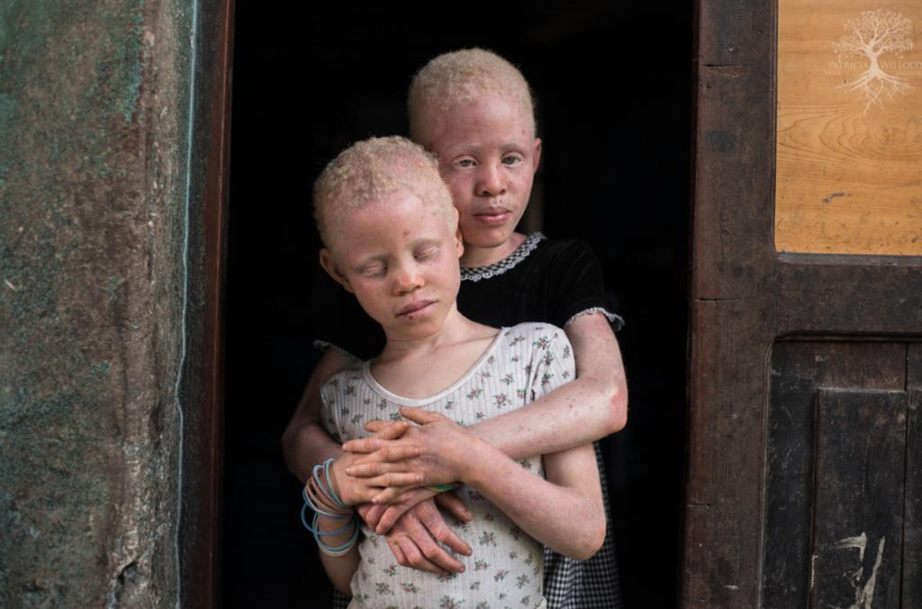 дети-альбиносы в африке