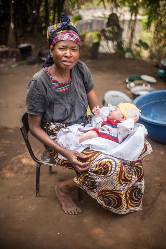 младенец-альбинос в объективе патрисии уиллок