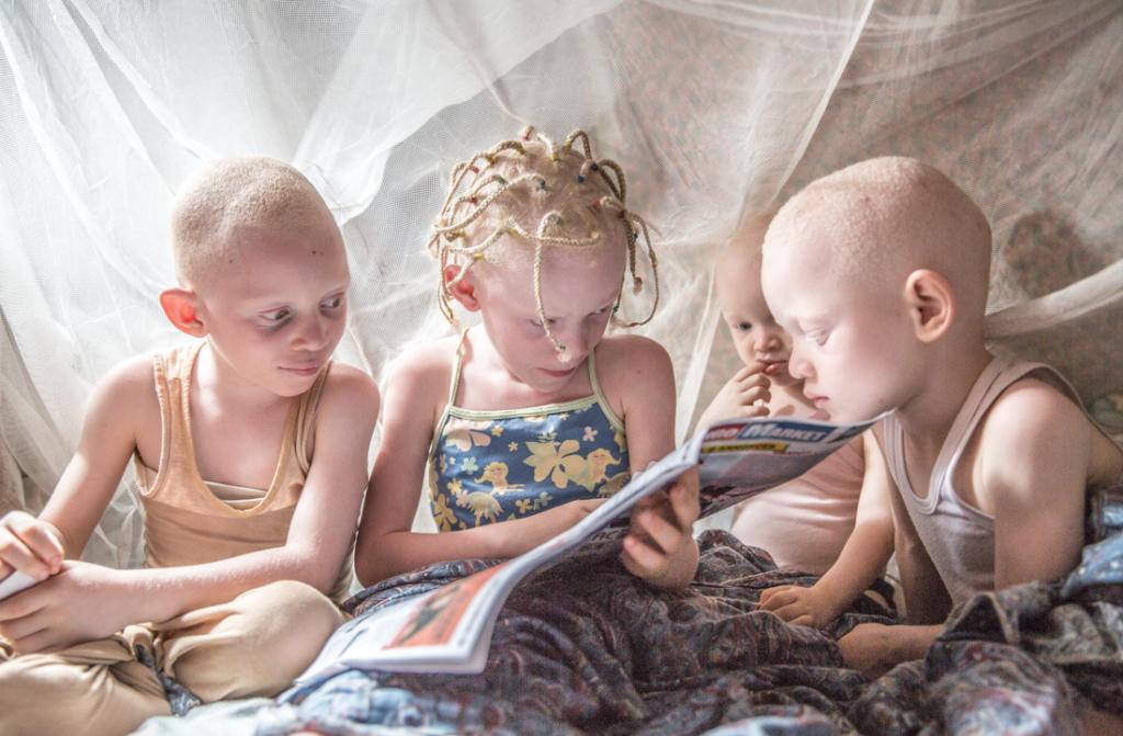 фотопроект о защите детей альбиносов