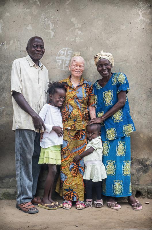 женщина альбинос с семьей: патрисия уиллок