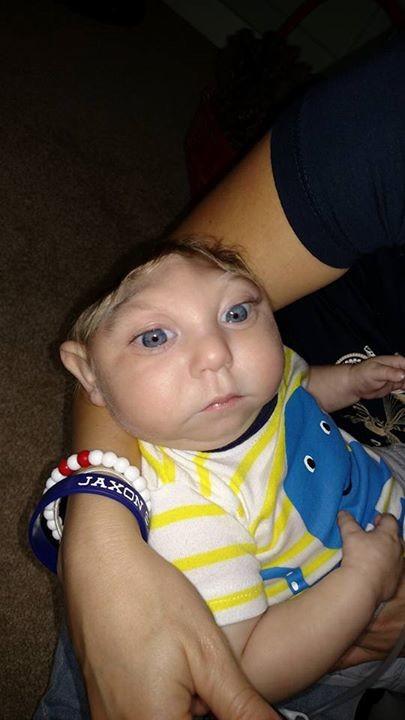 малыш с болезнью