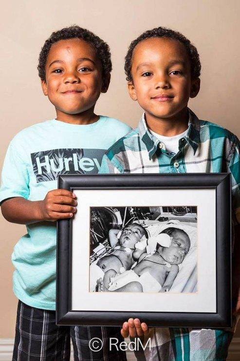 недоношенные близнецы