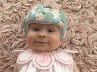 Ее сыну пришлось носить медицинский шлем для черепа, но она превратила это в его достоинство